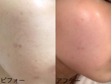 ベルブラン 効果 ニキビ跡 消す 化粧品
